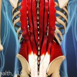 A great link for chronic low back pain!
